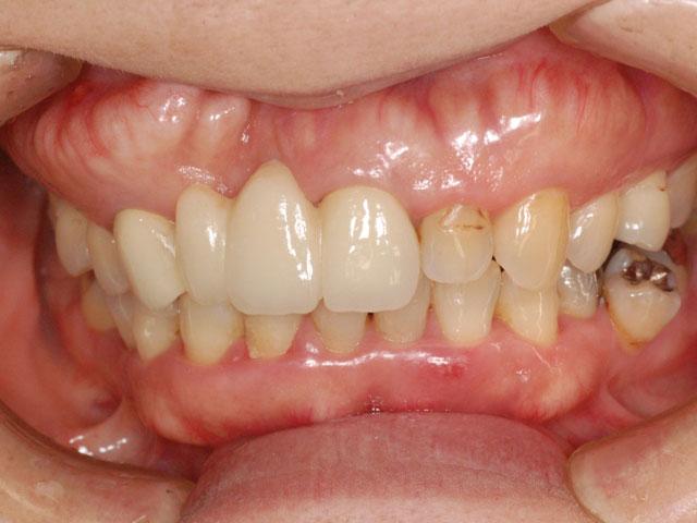50代前歯をセラミックで綺麗にした症例