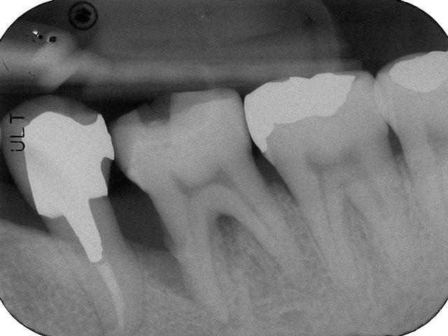 歯周病で吸収してしまった骨を再生療法で再生させた症例
